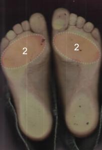 középső lábujj alatti fájdalom