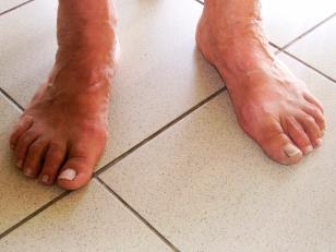túlerőltetett láb ha minden ízület fáj