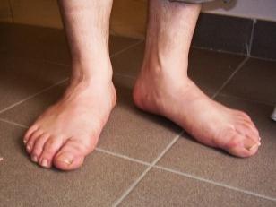 túlerőltetett láb fájó térdízület a térd
